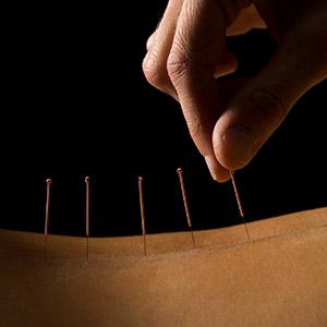 Jennifer Perry Acupuncture Bromsgrove